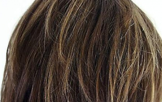 aankoop haarreconstructie